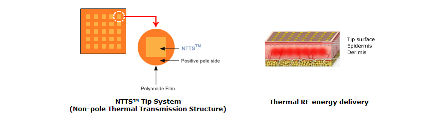 Thermal RF system